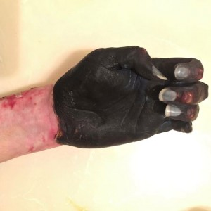 One hand already has been amputated due to the gangrene that set in after Amy went into septic shock. This is her remaining hand.