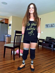 Amy also is seen at home where she is learning to get around with her prosthetic legs. Photo by Donna Ritchie