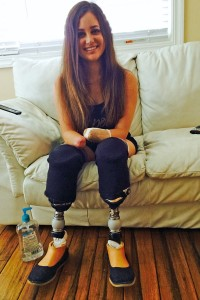 Amy Martinez lost her hands and feet to amputation in 2015.